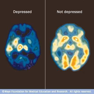 Les effets du stress sur le cerveau